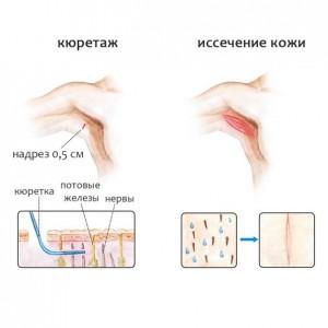 Амбулаторная процедура