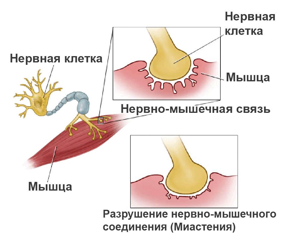 миниастения