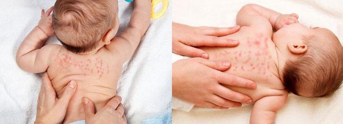 Потница на попе, спине и под мышками у взрослого и ребенка