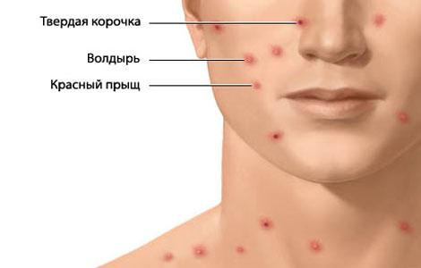 симптомы потницы