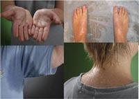 Мокрые ладони, ноги, подмышки и затылок