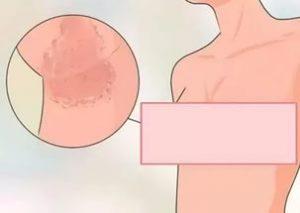 Покраснение под грудной железой фото чем лечить