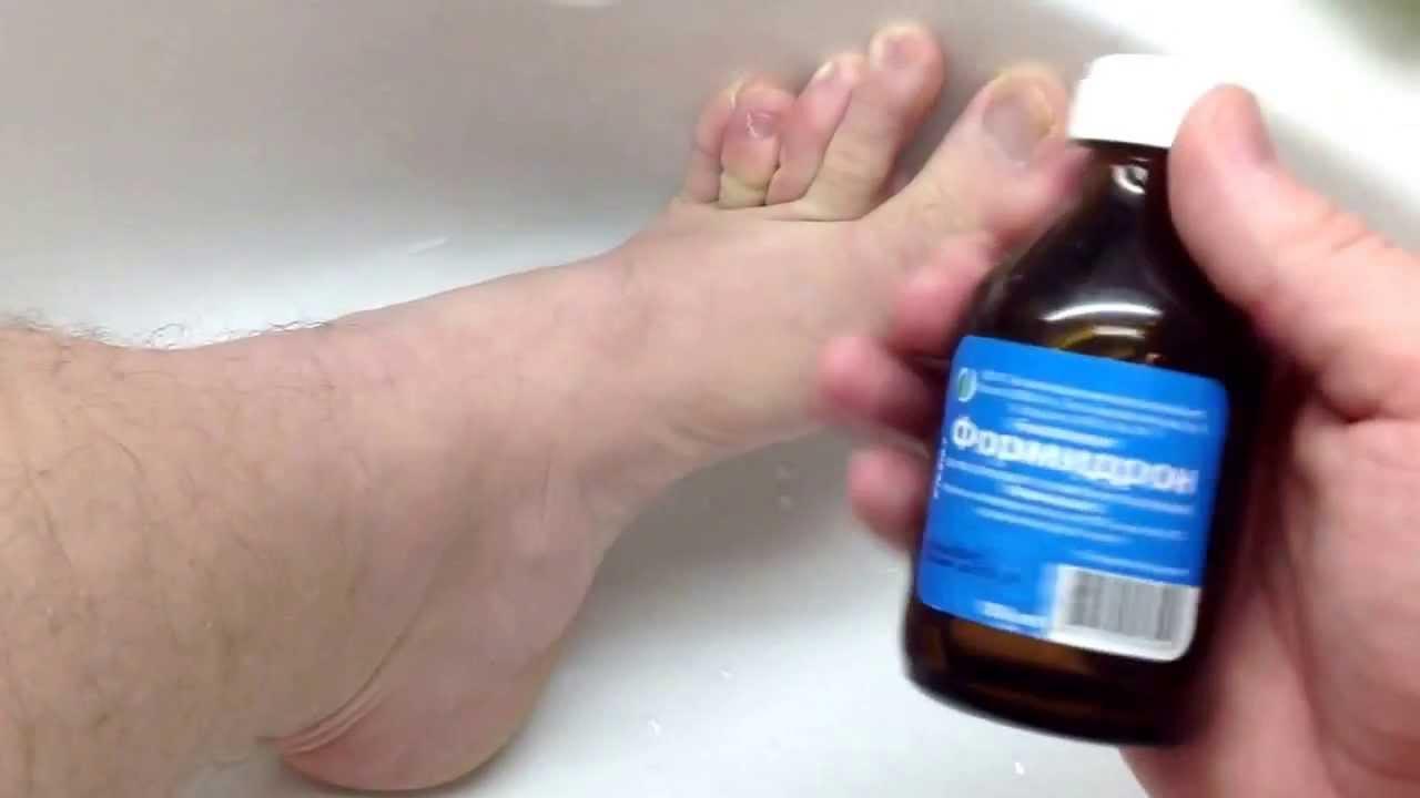 Запах от ног и обуви как избавиться в домашних условиях